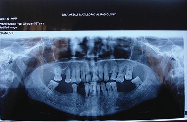 Radiografie panoramica a leziunii