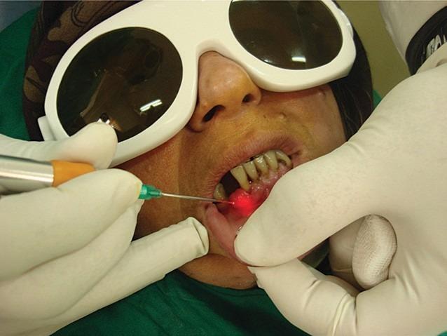 Tratamentul cu un laser dioda