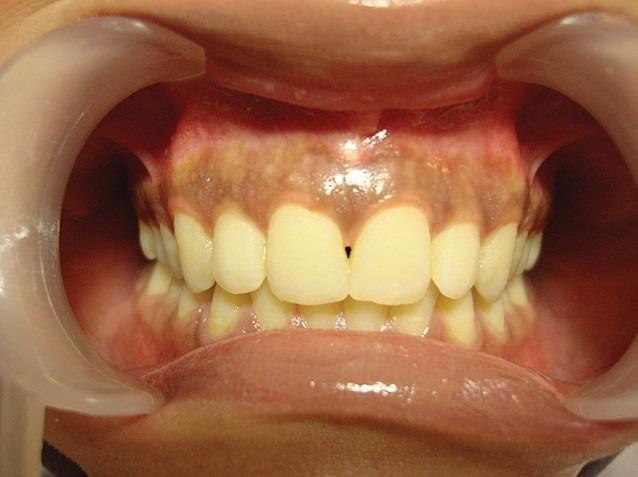 Hiperpigmentarea fiziologică difuză a gingiei pacientului înainte de terapia cu laser